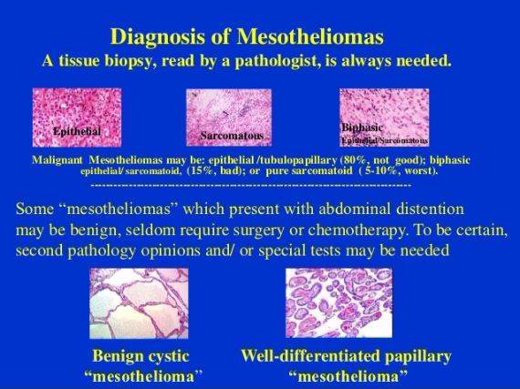 Image Result For Is Mesothelioma Cancer