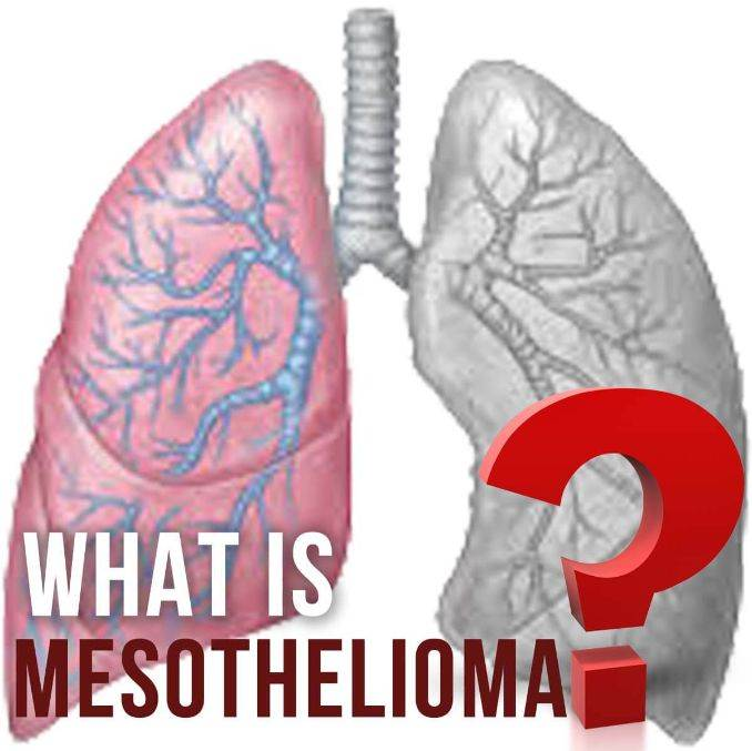 Mesothelioma Overview Of Malignant Mesothelioma Cancer