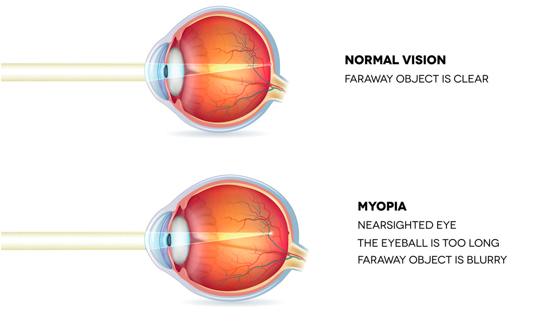 Myopia: A Modern Yet Reversible Disease — Todd Becker, M.S.
