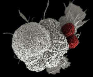 SEM einer Krebszelle