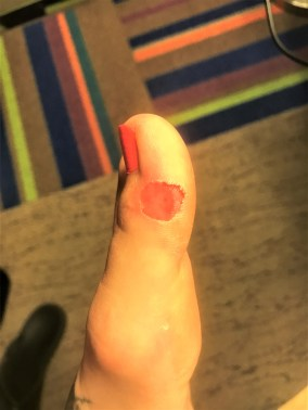 running nightmares - blisters - how to prevent blisters during running