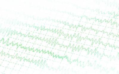 Effetti dei tremori terapeutici auto-indotti sulla qualità di vita di operatori sanitari: uno studio pilota
