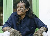 Tree man: 'I want to get married'