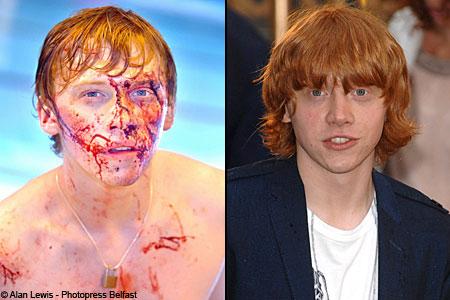 Rupert Grint bloody