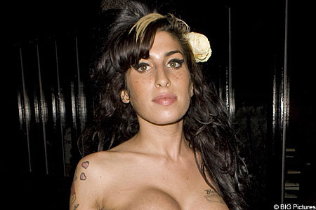 Winehouse recovering from 'bad reaction'