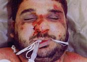 Baha Mousa's injuries