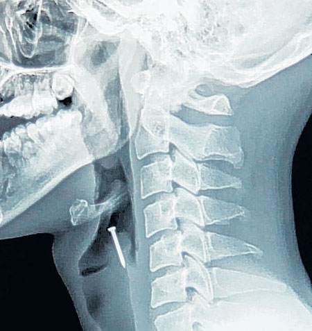 This X-ray shows a tack accidentally swallowed by a Chinese carpenter