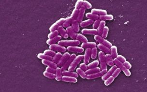 Several restaurants in the north-east had E.coli on their dishcloths according to the HPA (PA)