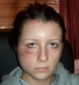 Rachel's scalp and swollen face were left bruised and burned (Pictures: Caters)