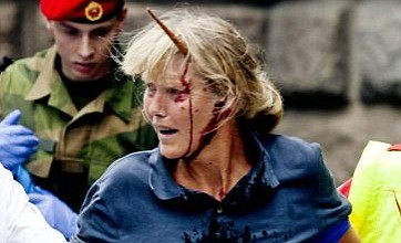 Norway bombing victim who had 12-inch spike in her head goes back to work