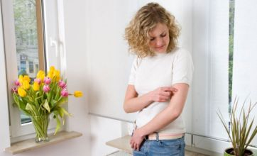 National Eczema Week: Tormented by the itch