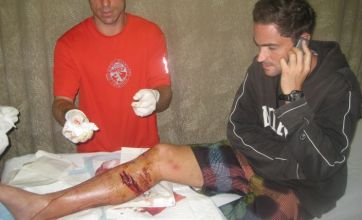 French diplomat attacked by shark while kite surfing