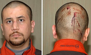 Trayvon Martin 'shot through heart' as George Zimmerman pictures released