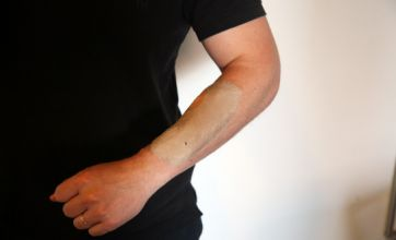 Here's a real close call: Implanting your mobile phone under your skin