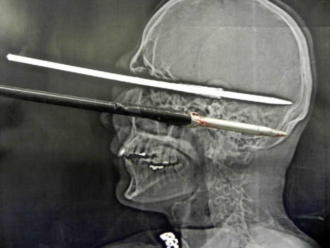A man has miraculously survived after he accidentally fired a 12-inch fishing speargun into his own head - somehow suffering no brain damage. Bruno Barcellos de Souza Coutinho, 34, was cleaning the weapon at his home in Petropolis, near Rio de Janeiro, when it went off in his hand. The harpoon entered his head through the corner of his left eye - penetrating almost six inches before lodging itself on the top part of the brain. Amazingly, he arrived at a hospital a full 10 hours later in a lucid state. He was immediately taken to surgery. After a four-hour procedure the object was removed without any neurological damage. Fortunately for the man, the spear was covered in some kind of tape so its barbs were not able to open and attach themselves to the skull. The surgeons were able to remove it relatively easily the same way it went in. Another operation followed the following day, but doctors were unable to save the vision to his left eye.  The accident happened on Sunday and doctors at