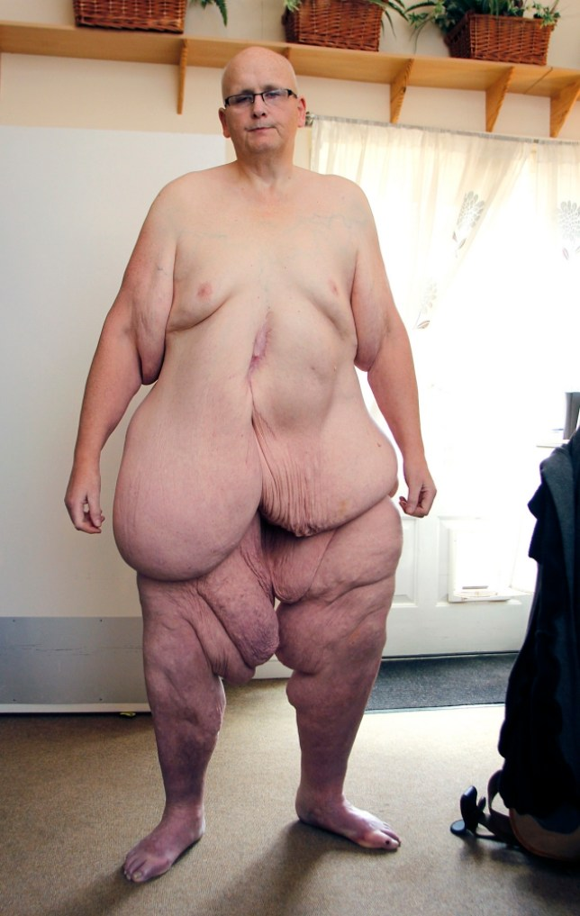 Former World S Fattest Man Paul Mason Poses Naked Metro News