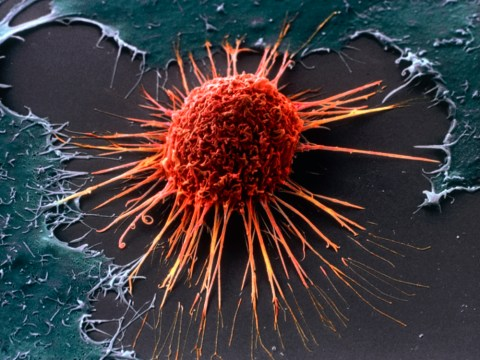 Cancer warning: Half of us in 2020 will get the disease in our lifetime