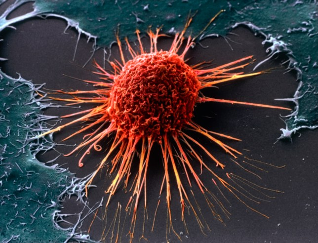 ^BCervical cancer cell.^b Coloured scanning electron micrograph (SEM) of a cervical cancer cell. This large rounded cell has an uneven surface with many cytoplasmic projections, which may enable it to be motile. Typically, cancer cells are large and they divide rapidly in a chaotic manner. Cancer cells may clump to form tumours which may invade and destroy surrounding tissues. Cancer of the cervix (the neck of the uterus or womb) is one of the most common cancers affecting women and can be fatal. Magnification: x5000 at 6x7cm size.