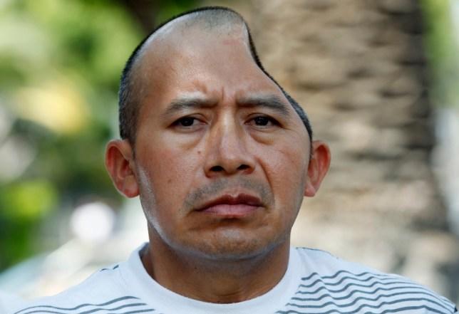 Man who lost half his skull in pub attack awarded £38.2million compensation