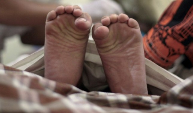 Give the dog a bone? Man wakes up to find pet has eaten his toes