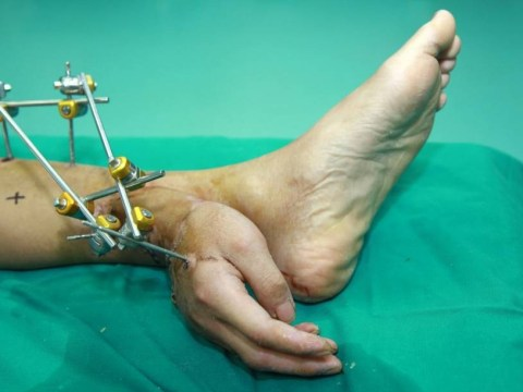 Severed hand saved after being attached to man's ankle