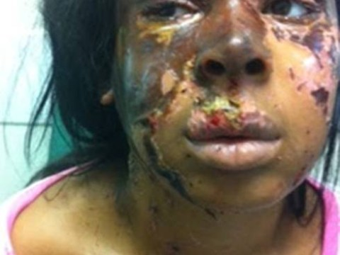 Acid attack girl 'was victim of jealousy'