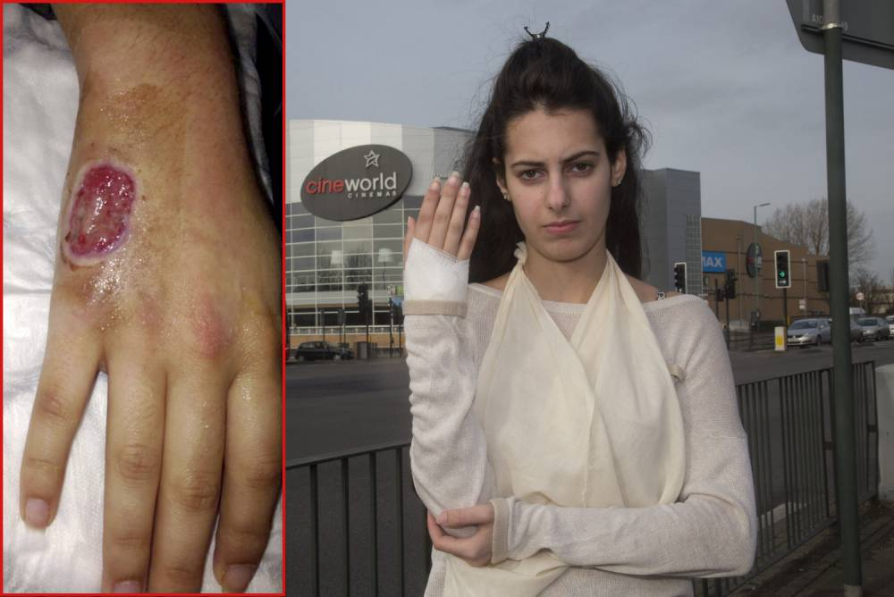 Worst date ever? Teenager left with hole in her hand after cinema spider bite