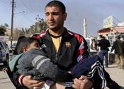 Iraq boy, bomb victim
