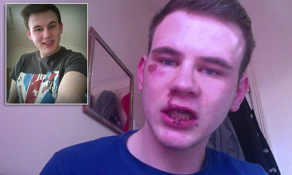 Gay student was not the victim of a violent homophobic attack - he just 'fell over'