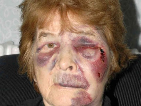 Police seek witnesses for mugging that left 78-year-old grandmother black and blue