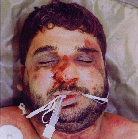 Baha Mousa's injuries - he was later to die