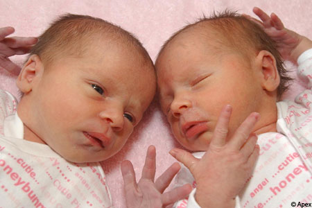 Sophie and Nicole Down are thought to be the first twins born at the same time