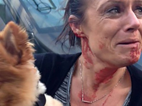 Staffordshire bull terrier viciously attacks woman as she protects her young puppy