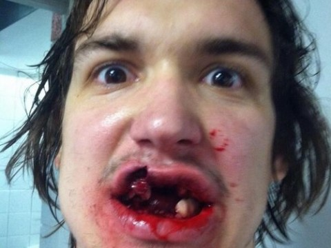 Ice hockey's Mitch Callahan shows off horror injury on Twitter and says 'Ouch'