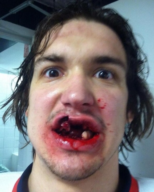 Mitch Callahan posted his injury on Twitter (Picture: Twitter)