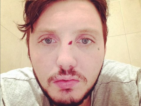 James Arthur gets battered and bloodied in pub brawl, posts evidence on Instagram