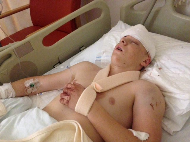 Teen scarred for life and left with shattered bones in hit-and-run