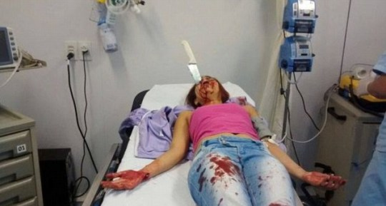 Brazilian woman with kitchen knife in her head survives