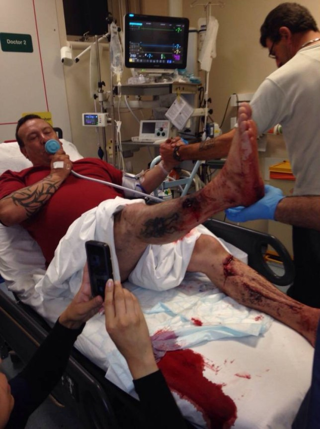 Pic Neil Jones. 07970 790893. Picture date 9th October 2014. Pic shows;David Aspinall in hospital after an ecig he was smoking exploded.