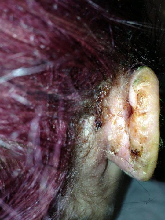 Student loses half her ear after piercing goes wrong | Metro