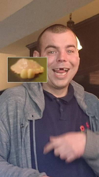Landlord finds set of false gnashers in pub