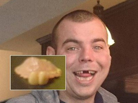 Landlord finds set of false gnashers in pub