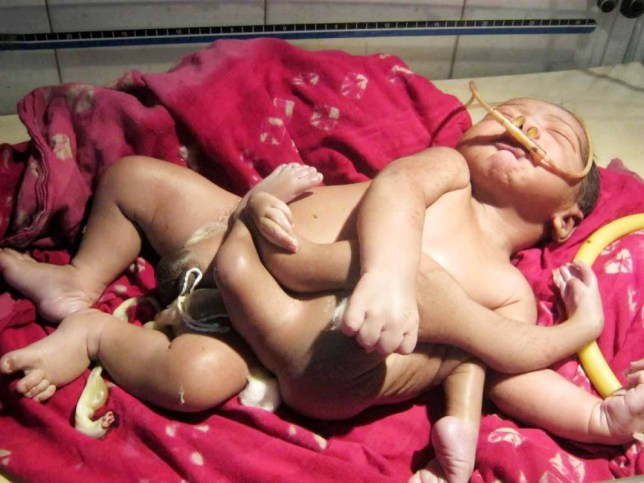 """Pic shows: A baby was born with four arms and four legs.nnA baby born with four arms and four legs has been dubbed God Boy by his parents because they say he looks like an Indian God.nnA relative not named told local TV: """"When he first came out we couldn¿t believe it.nn""""The nurses said he was badly deformed but I could see that this was a sign from God.nn""""In fact, this is a miracle, its God¿s baby.nn""""Indian God¿s have extra limbs just like this.""""nnNow thousands of locals are flocking to the hospital in Baruipur, a city in India¿s eastern West Bengal State, to catch a glimpse of the toddler.nnChukka Rao, 67, from a neighbouring village, said: """"When we first heard about God Boy we were slightly sceptical.nn""""But we came to see because we were intrigued by all the news we were hearing from friends and others.nn""""When we eventually saw a pic of the child it was a wonder.nn""""This is truly the son of the Hindu God Brahma, who also has four arms and four legs.""""nnBut with the village being overrun by curious believers from across the region, hard-nosed policemen say they are having trouble controlling them.nnA police spokesman said: """"This is a freak baby and it is tragic, there is nothing Godly about him at all.nn""""But the crowds are going berserk and clamouring to see the child.nn""""Hundreds are crying in the streets, hundreds of others are praying and setting up camp here.nn""""Some are even panicking and believe this is a sign of the end of the world. I have never seen anything like this in my whole career.""""nnThe child¿s family member added: """"It is understandable that there is a lot of excitement about this.nn""""It is only natural that people want to see the God Baby.""""nnHowever medics say that the birth defect is actually the result of the remains of the baby's twin being joined to him in the womb. In this case only the arms and legs of the twin joined on to the baby creating the four-armed and four-legged child.nn(ends)n"""