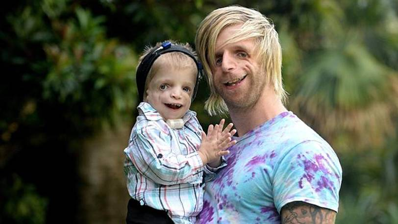Jono Lancaster, age 30, has it. When Jono heard about a 2 year old boy named Zackary Walton who lives in Australia and shares the condition, he flew to Australia to meet the kid.