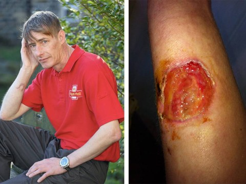 Royal Mail suspends Christmas delivery on street after postman is brutally attacked by dog