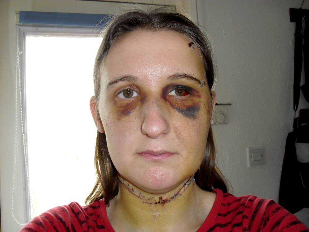 Collect photo of Natalie Allman a week after she was attacked by her partner Jason Hughes. See News Team story; A mother who was tortured for seven hours in front of her twin sons has been forced to write to her attacker, or face the prospect of being sent to jail herself. Natalie Allman, 29, was battered with a dumb-bell and slashed across the throat by Jason Hughes, 42, because he wanted to make her look 'ugly' after she dumped him. Former Territorial Army soldier Hughes was jailed for nine years in 2012 for the brutal attack at the couple's home in Ross-on-Wye, Herefordshire - which was witnessed by their twin sons. But now a judge has ordered Ms Allman to send three letters a year to Hughes, updating him on their five-year-old boys and including photographs of the children every Easter, September and December. The order has been made under parental rights laws, and if Ms Allman does not comply she will be in contempt of court - and could be imprisoned.