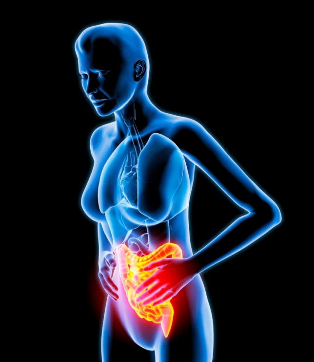 Bowel pain. Computer artwork of a naked woman with bowel pain (orange), which could be caused by IBS (irritable bowel syndrome) or Crohn's disease. --- Image by © Roger Harris/Science Photo Library/Corbis