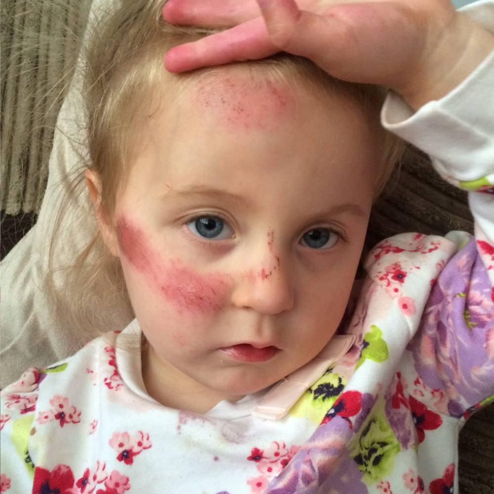 """Pictured - Lucie Wilding of Blackpool, Lancs., Lucie was struck by a hit and run cyclist outside her house in Blackpool, Lancs., See Ross Parry Copy RPYCYCLE : This is the heartstopping moment a toddler is knocked over by a hit-and-run cyclist and dragged 12 FEET along the pavement outside her home. In graphic CCTV footage, Lucie Wilding, three, can be seen stepping out of her front gate before being knocked over and dragged face-down along the street.  Her tiny body got caught in the pedals of the bike forcing the cyclist to fall off, before he cruelly fled the scene. Mum Lauren Howarth, 26, who witnessed the horror, said: """"One minute she was behind me and the next she was further along the street, sprawled across the pavement. Thomas Temple/rossparry.co.uk"""