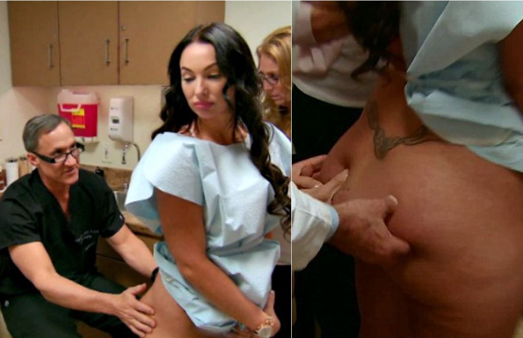 Woman with DD breast implants in her bum admits her 'butt twerks on its own'