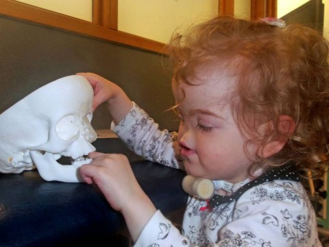 Toddler born without a nose gets UK's first 3D-printed nasal implant